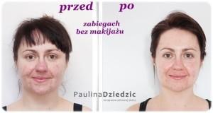 metamorfoza efekty na twarzy